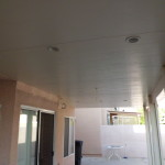 Laguna Niguel Insulated patio cover recessed lights