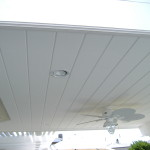 Recessed lights on waterproof deck in Aliso Viejo